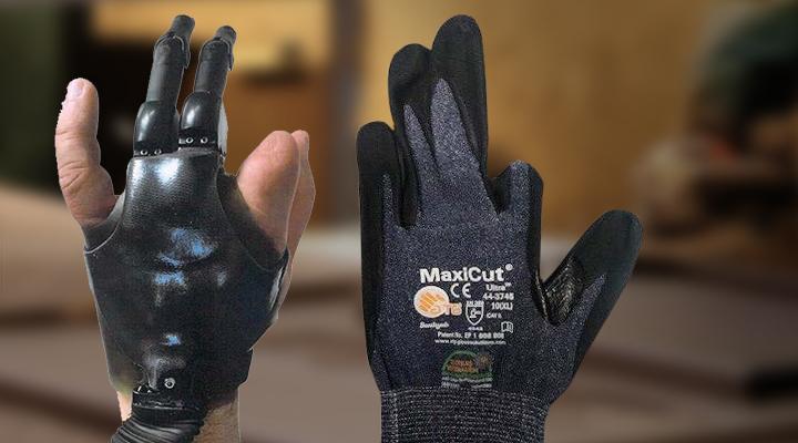 Bild vom Case Versehrtenhandschuh für Finger-Prothesen